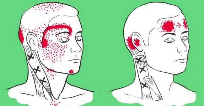 Nedostatak ove četiri supstance u organizmu prouzrokuje glavobolju