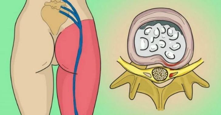 Kako otklještiti uklješteni živac u lumbalnom dijelu (išijas): 2 jednostavna načina osloboditi se bola.